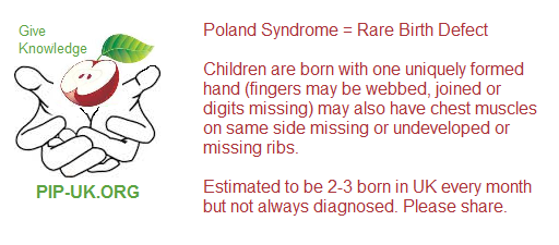 Poland Syndrome Info Card Seven