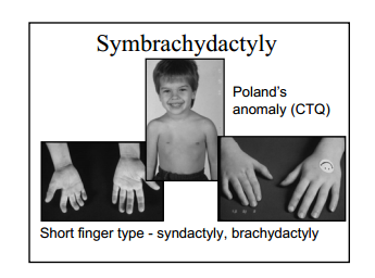 poland_syndrome_visual