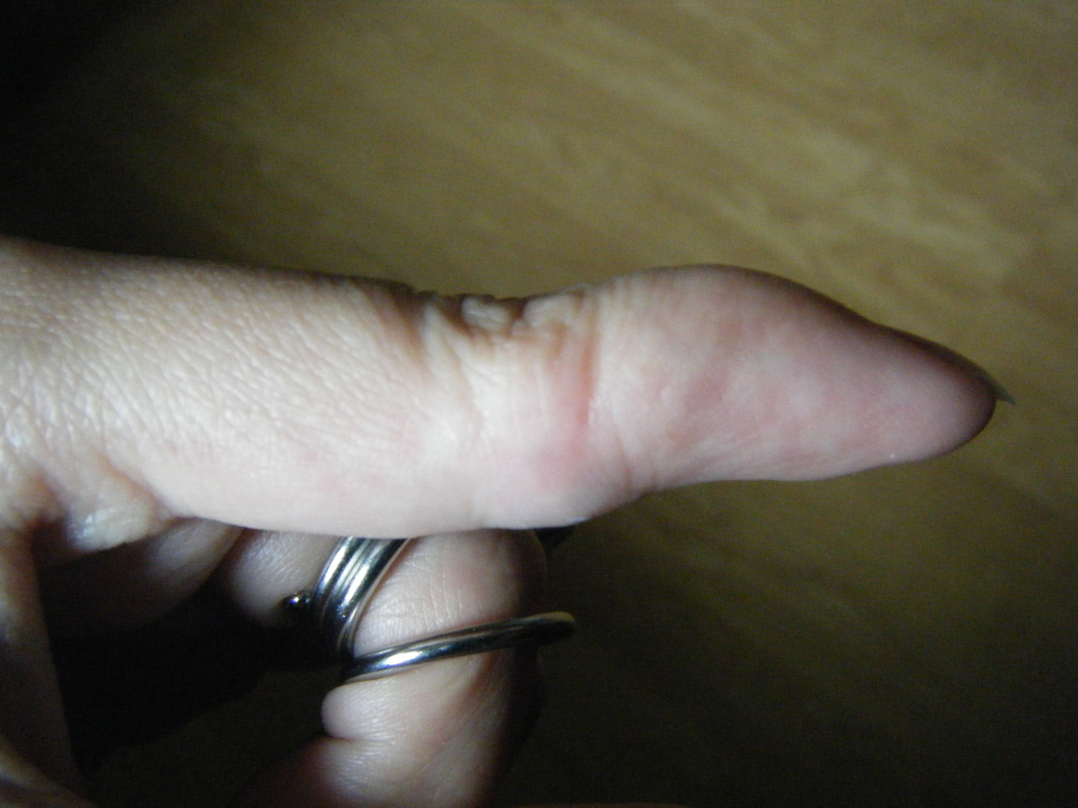 Finger braces 4