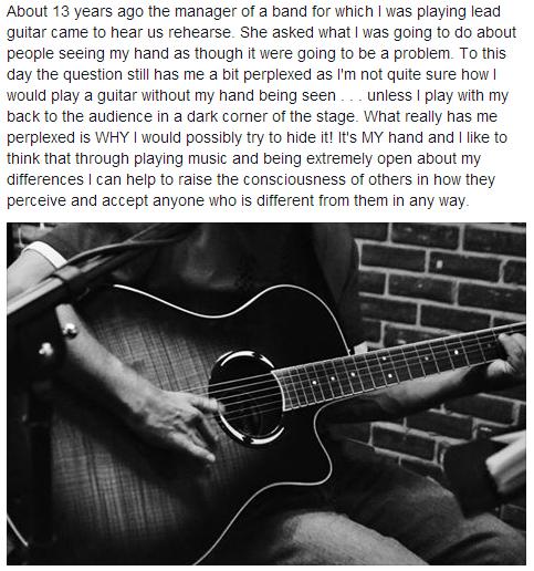 poland-syndrome-guitar